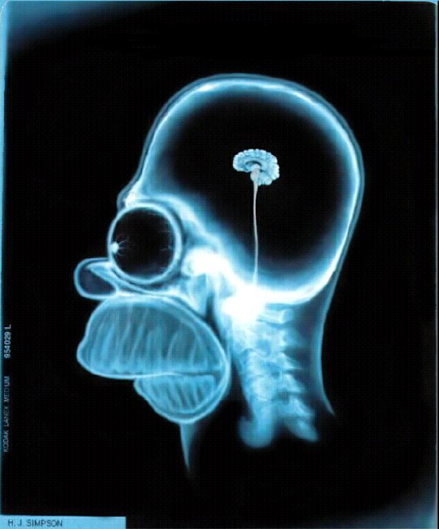 Homers brain